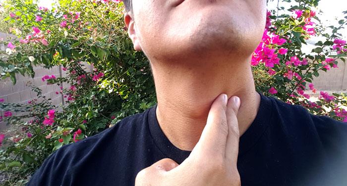 11 Natural Treatments for Hypothyroidism